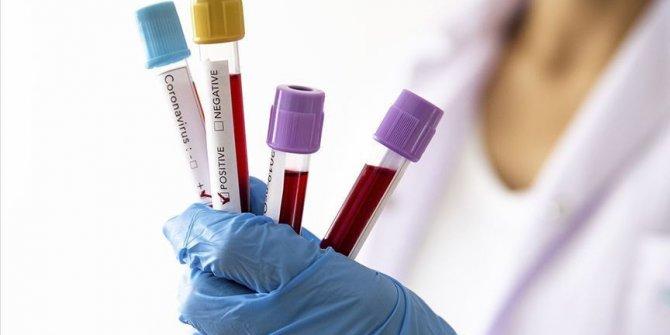 Dört klasman ve iki klasman yardımcı hakemi, koronavirüse yakalandı