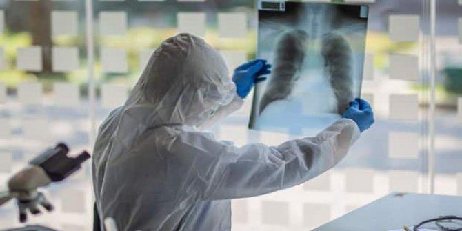 Koronavirüste korkutan mutasyon! Bilim insanları: Maske ve sosyal mesafeyi atlatıyor