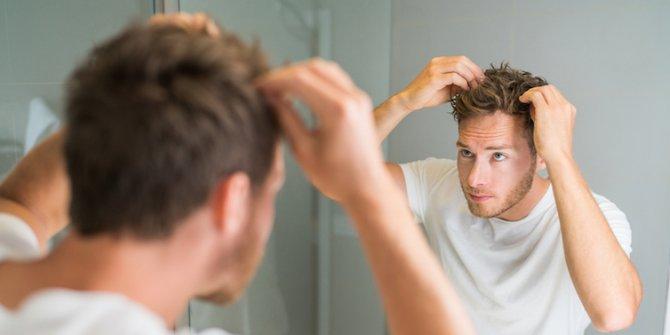 Saçkıran nedir, saçkıran belirtileri ve tedavi yöntemleri nelerdir?