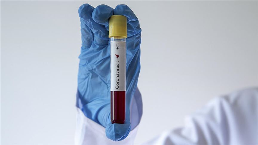 Üst klasman hakemlerinin Kovid-19 testleri negatif çıktı