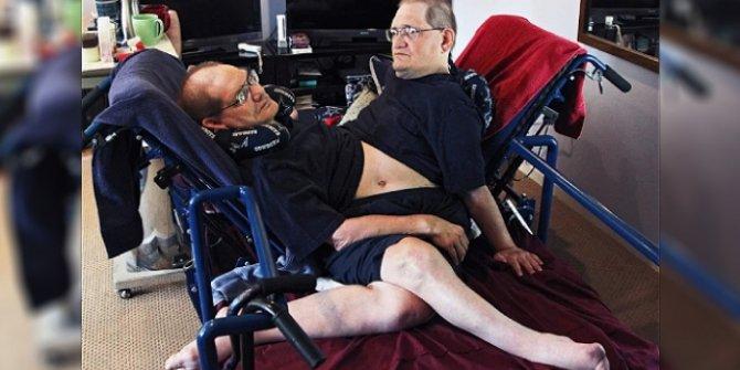 En uzun süre hayatta kalan yapışık ikizler yaşamını yitirdi