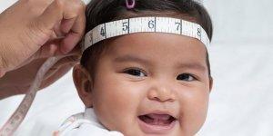 Doğuştan gelen ve  klinik bir durum olan Mikrosefali nedir ?