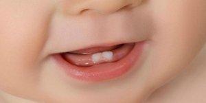 Süt dişlerinin çürüyüp erken çekilmesi halinde ne yapılması gerekir?
